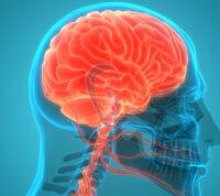 Признаки инсульта можно обнаружить за 10 лет до него