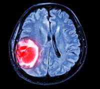 Опухоль головного мозга можно обнаружить с помощью обычного анализа