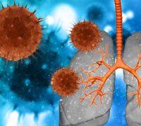 Высокая концентрация вируса в легких приводит к смерти от COVID-19