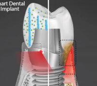 Ученые создают «умный» зубной имплант