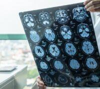 Отказ от гаджетов ускоряет выздоровление после сотрясения мозга