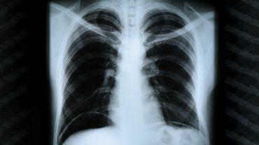 Атипичная пневмония. Что надо знать, чтобы вовремя обнаружить